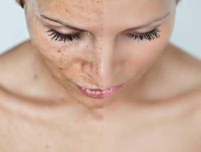 Como retirar lugares de pigmentary pós-natais em uma cara