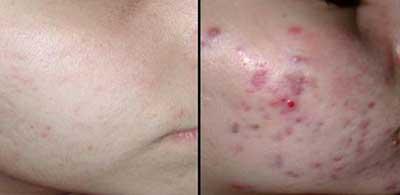 Tratamento de acnes cystous