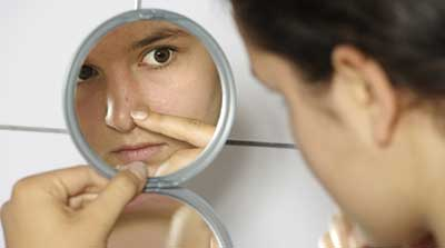 dicas para tratar acne