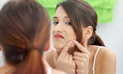acne na gestação
