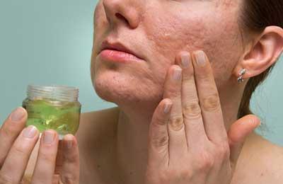 remédio para acne e espinha