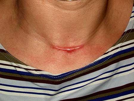 Fotos da Cicatriz Hipertrófica