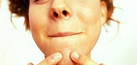 como cuidar de acne