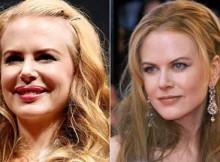 Antes de Depois do Botox