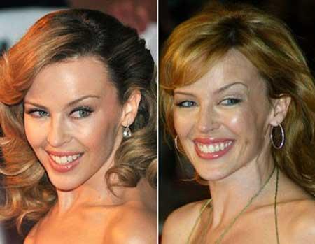 Botox em volta de respostas de foto de olhos a e