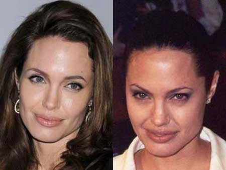 Fotos de Botox