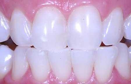 Tag Clareamento Dental Caseiro Valor