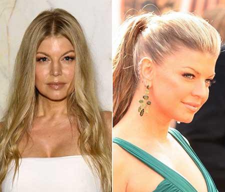 Imagens de Botox