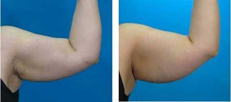 Antes e Depois da Lipoescultura