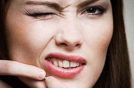 Tetraciclina para Acne