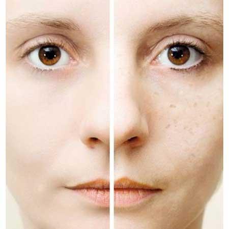 Máscaras de remoção de traços de lugares na cara