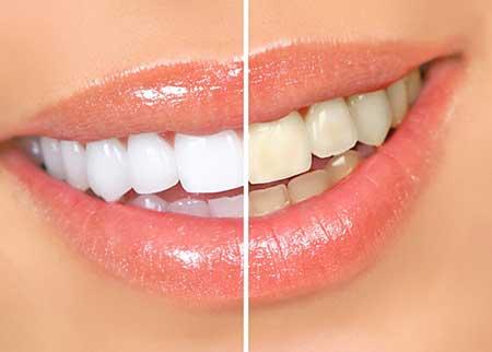 receita clareamento dental caseiro com bicarbonato