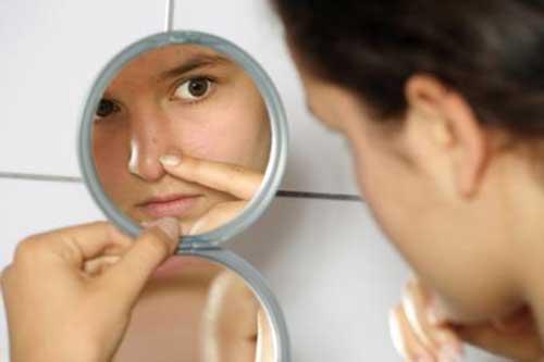 cicatricure para acne