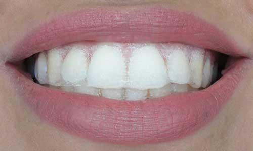 para dentes amarelados