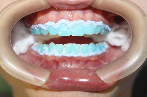 Clareamento Dental A Laser O Que E E Como Funciona